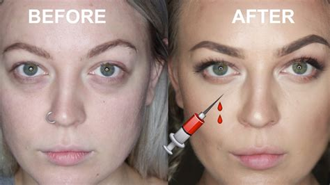 Tear trough injections! BEFORE AND AFTER VLOG - YouTube