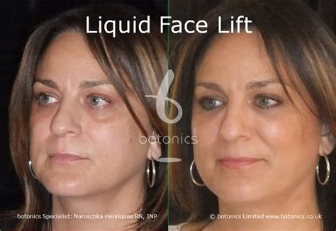 Cheek Fillers Before and After Pictures - botonics UK