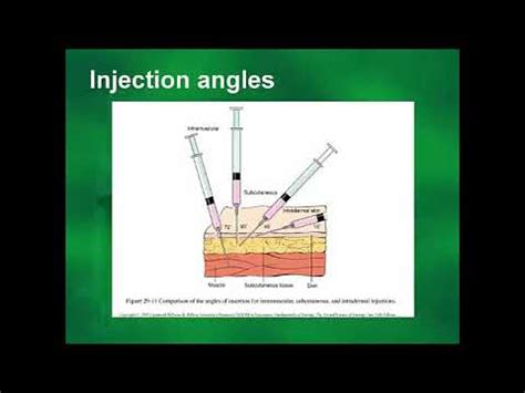 How To Improve Your Injection Technique - YouTube