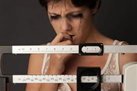 The Bariatric Dutchess: Anorexia After Gastric Bypass